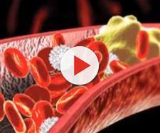 Sla e colesterolo 'cattivo' LDL: i risultati di una recente ricerca