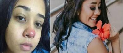 Jovem fica paraplégica após a colocação de um piercing no nariz