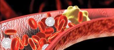 Sla, una scoperta italiana: colesterolo 'cattivo', sigarette e troppo sport tra le cause
