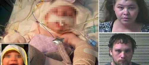Usa, bimba di 3 mesi maltrattata dai genitori: danni al cervello, arrestati.