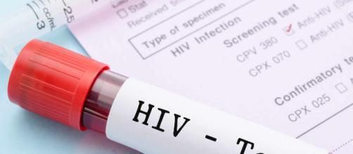HIV: nel 2019 parte la sperimentazione vaccino terapeutico ... - ilpapaverorossoweb.it