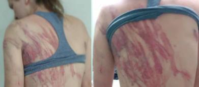 Mulher acusa o marido de espancá-la com fio elétrico na frente do filho de 8 meses