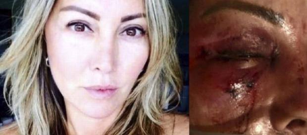 Mulher espancada por homem de rede social (Reprodução/Facebook/TV Globo)