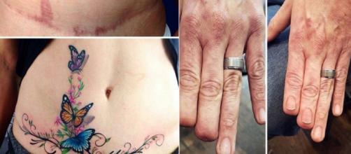 Tatuagem criativa para esconder marcas e cicatrizes. (Foto/Reprodução via Tudo Interessante).