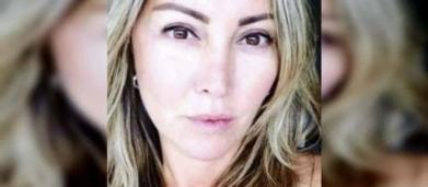 Reconstrução facial de empresária espancada por 4h deve durar seis meses, diz médico