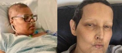 Deise e Betty Lago, mulheres que lutaram contra o câncer (Reprodução Instagram/Facebook)