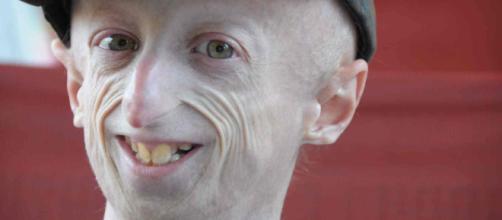 Sammy Basso, il 23enne malato di progeria operato con successo al ... - ultimavoce.it