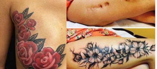 Belas tatuagens para esconder marcas no corpo.(Foto/Reprodução via Incrível Club).