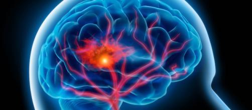 Ictus giovanile, la malattia cerebrovascolare che interessa i giovani