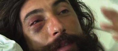 Trani, Vittorio Brumotti selvaggiamente aggredito è stato ricoverato in ospedale