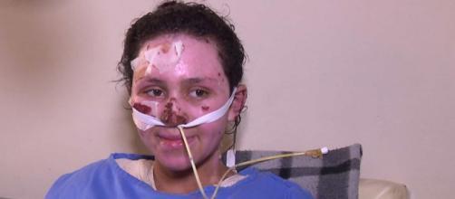 Morre a menina que teve 60% do corpo queimado ao salvar irmão (Foto: Reprodução/RPC)
