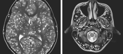 Jovem morre devido a parasitas no cérebro. (Divulgação/ESIC Medical College)