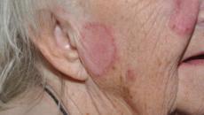 Santé : le lupus cutané, une maladie difficile à soigner