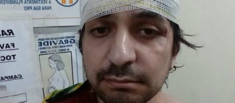 Leandro Mohallem é vítima de agressão. (Reprodução/Twitter/@CarlaZambelli17)