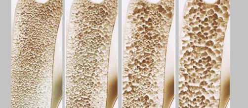 Negli Stati Uniti la FDA ha approvato un nuovo farmaco contro l'osteoporosi. Si Chiama Evenity ed è un anticorpo monoclonale umanizzato.