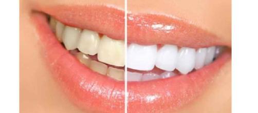 Sempre più diffusi i prodotti per lo sbiancamento dei denti ma questi possono essere anche pericolosi se usati in modo improprio