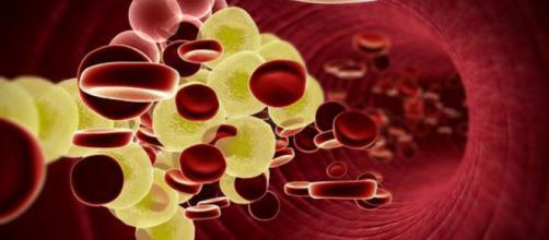 Nelle donne il colesterolo Ldl è molto pericoloso anche a bassi livelli.