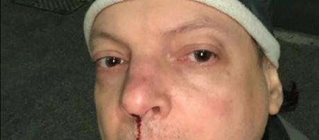 Il comico Dado Pellegrini, subsubito dopo l'aggressione.