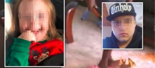 Patrigno picchia a morte bimba down di 4 anni: 'Mi interrompeva mentre parlavo' - Teleclubitalia