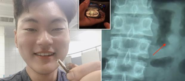 Apple's AirPods Still Functional In Man's Stomach After Being ... - joy105.com