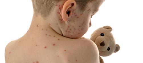 Rimini, epidemia morbillo: arrivate le prime multe ai genitori no-vax