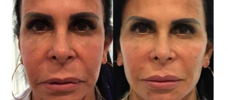 Gretchen é uma das famosas que aderiram à harmonização facial. (Reprodução/Instagram/@mariagretchen)