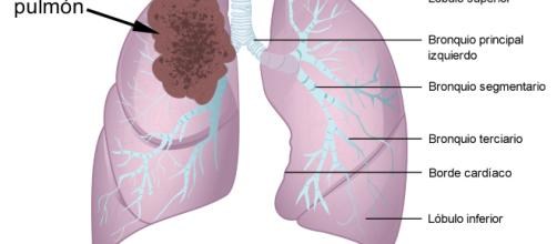 Los síntomas del cáncer de pulmón. / wikipedia.org