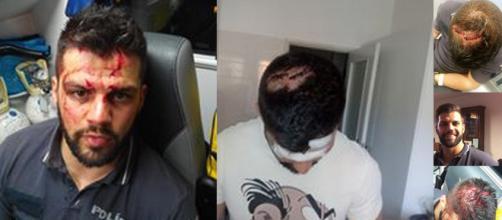 Agente da PSP agredido no cumprimento do dever ha 3 anos atrás, desabafa no Facebook após condenação dos seus colegas de Alfragide