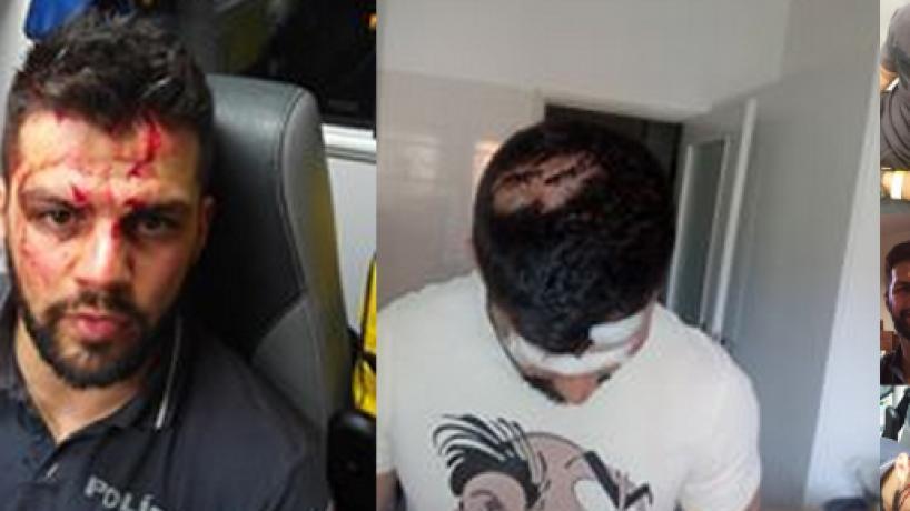 Agente da PSP agredido há três anos desabafa após condenações dos colegas de Alfragide