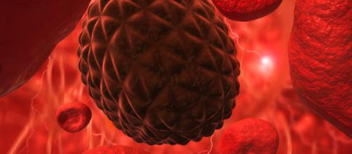 Il laser, valido strumento per individuare cellule tumorali nel sangue, anche per melanomi