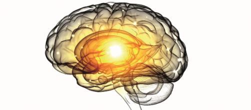 Relación entre la gingivitis y el Alzhéimer