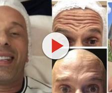 Rafael Ilha realizou procedimento de harmonização facial e botox. (Reprodução/Instagram/@rafael_ilha_oficial)