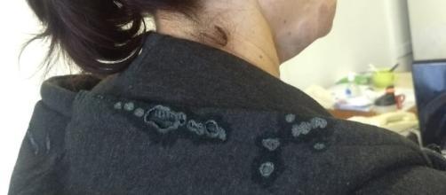 Vítima teve queimaduras no pescoço. (Reprodução/ Arquivo Pessoal)