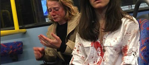 Una pareja de lesbianas sufre una agresión homófoba en un autobús