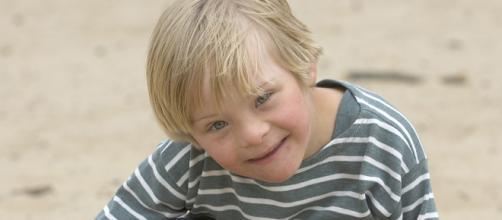 Existe t-il différentes formes de trisomie 21 ? - hizy.org