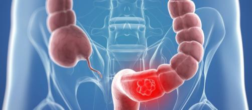 Dietas saludables y menos estrés previenen el colon irritable.