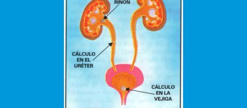 El sistema urinario es susceptible de padecer de cálculos renales. - wallpaperk.com