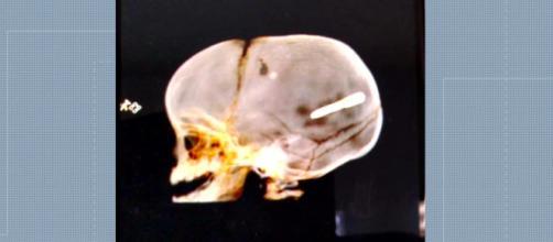 Criança ficou com objeto alojado no crânio. (Reprodução)
