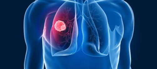 Salute: l'Europa approva il Nivolumab per la cura del tumore al ... - meteoweb.eu