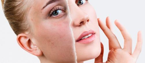 Limpiezas controladas previenen daños en el rostro. - elixirbylamaga.com