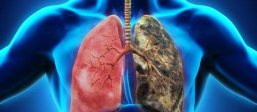 Un solo cigarrillo por día alcanza para tener riesgo de infarto o cáncer. - infobae.com