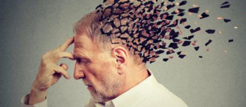 Malattia di Alzheimer o Morbo di Alzheimer, nuovo studio ne può anticipare l'insorgenza
