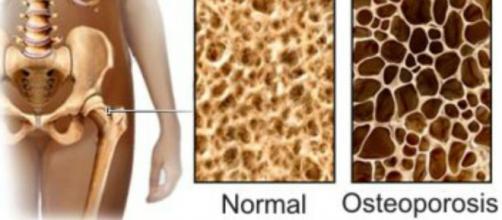 Una dieta rica en calcio ayuda a las personas mayores a evitar la osteoporosis.