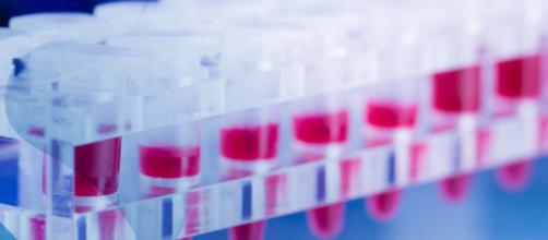 Car T, la cura per i tumori del sangue
