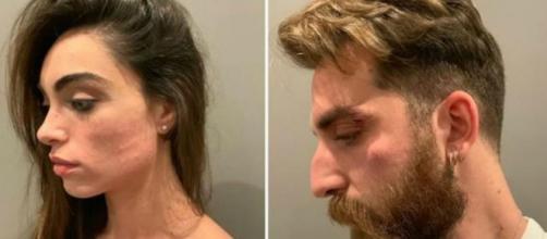 Lorella Boccia e il marito aggrediti e rapinati: 'Ci hanno intimidito con un coltello'