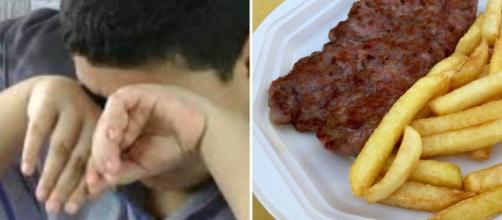 Un 17enne inglese mangia solo patatine fritte da anni: è diventato cieco.