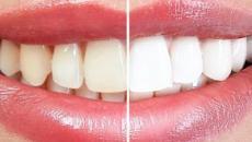 6 alimentos que devem ser evitados após o clareamento dental