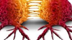 Metastasi tumorali: l'espressione della proteina L1CAM potrebbe favorirle