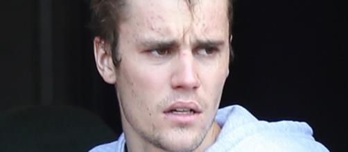 Doença de Justin Bieber não tem cura. (Arquivo Blasting News)