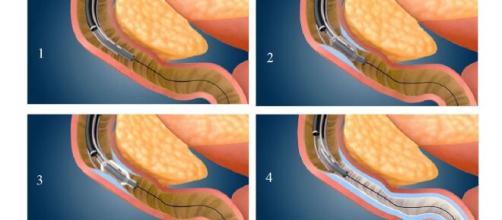 La procedura Fractyl DMR consente di effettuare un'ablazione idrotermica della mucosa duodenale con effetti positivi e permanenti sul diabete.
